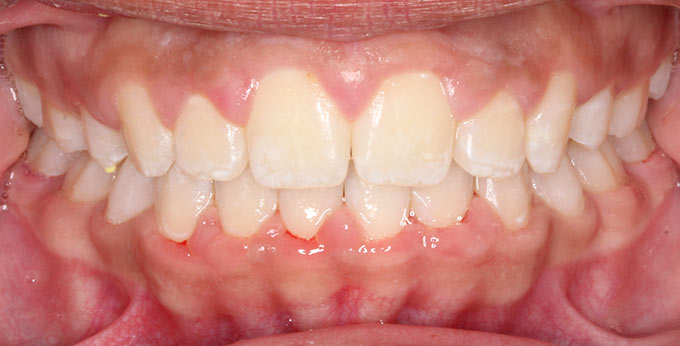 Children teeth after perth orthodontic treatment for severe dental crowding and misalignment
